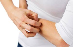 为什么冬季皮肤干燥易患瘙痒?