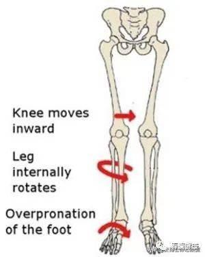怎么通过运动训练解决改善X型腿