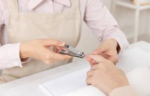 手指长倒刺的原因、处理方法及预防