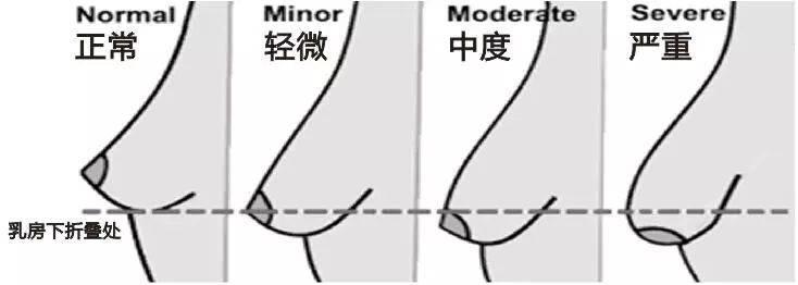 女性乳房下垂程度对比图