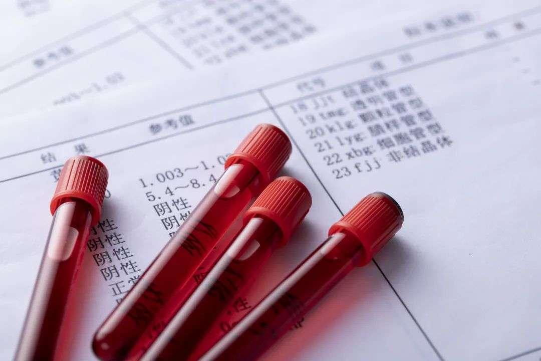 血红蛋白含量检测