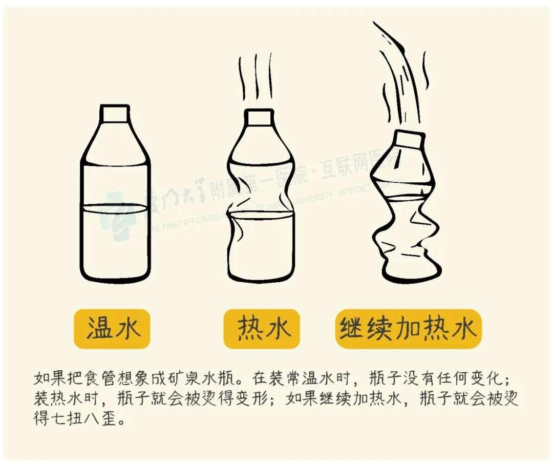 热水对食管的影响