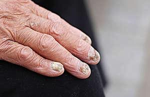 指甲变黄、变厚是得了灰指甲?能治好吗?