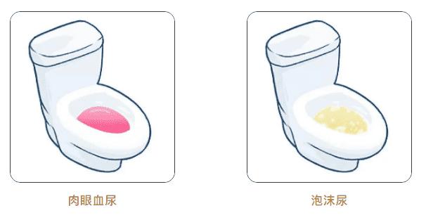肾脏健康看尿液颜色