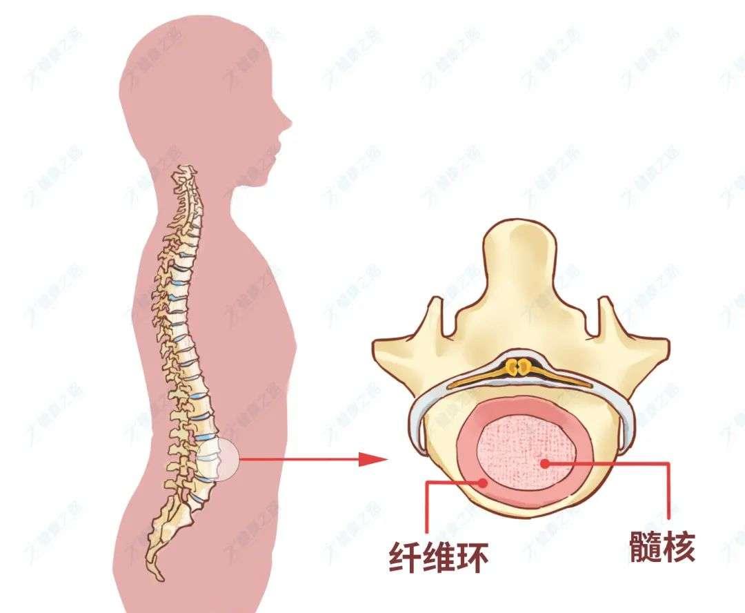 腰椎间盘突出
