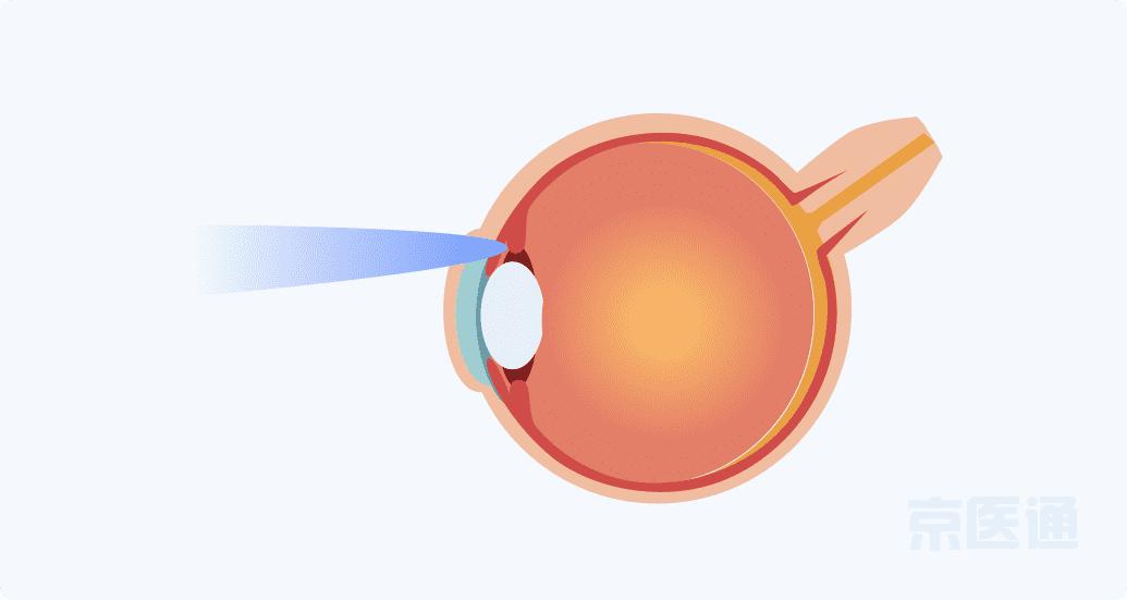 激光治疗青光眼
