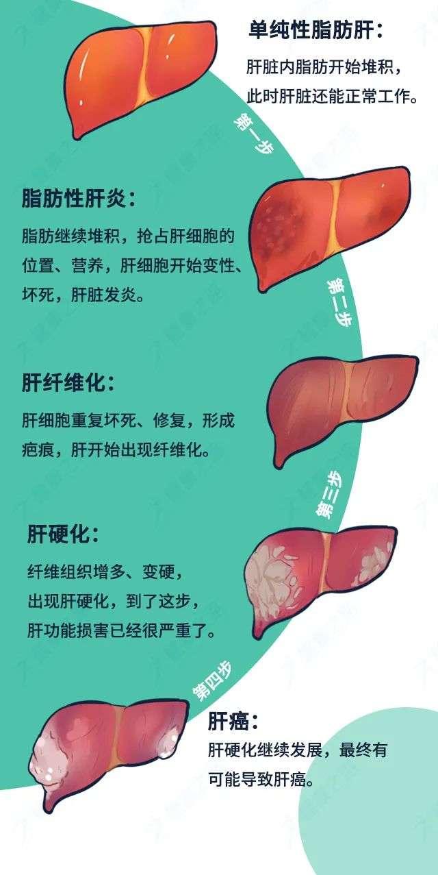 脂肪肝发展为肝癌只需4步
