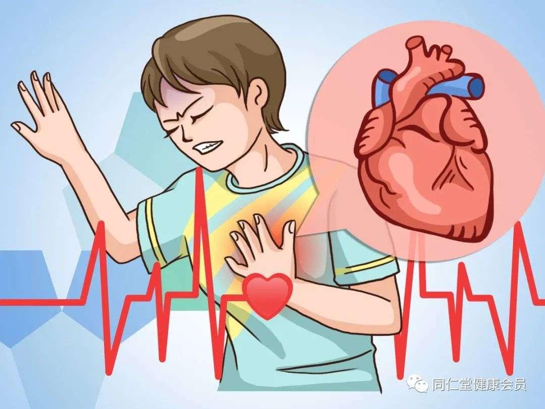 心梗的9个预警信号