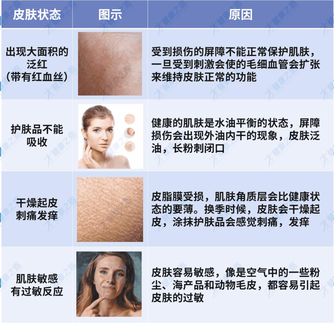 皮肤屏障受损的症状
