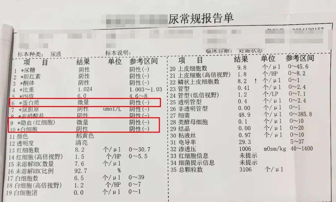 尿常规报告单