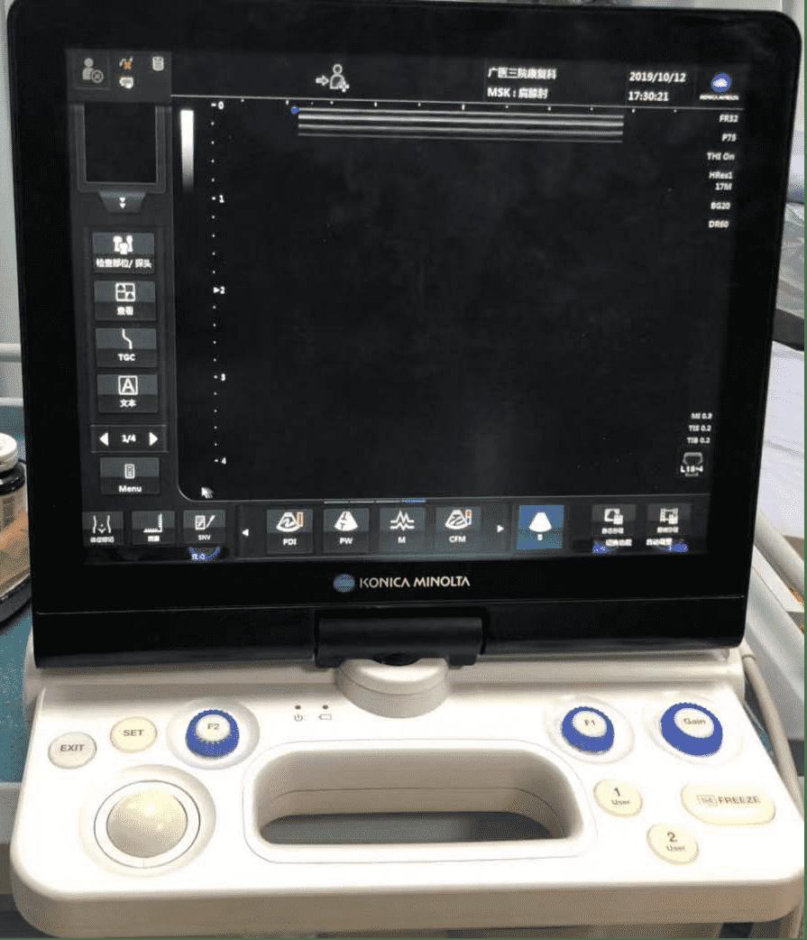 超声介入技术