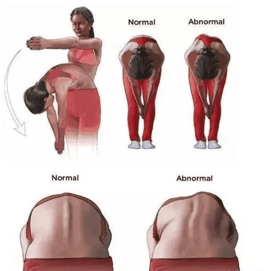 脊柱侧弯检测